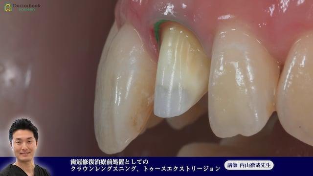 ⑧歯冠修復治療前処置としてのクラウンレングスニング、トゥースエクストリージョン