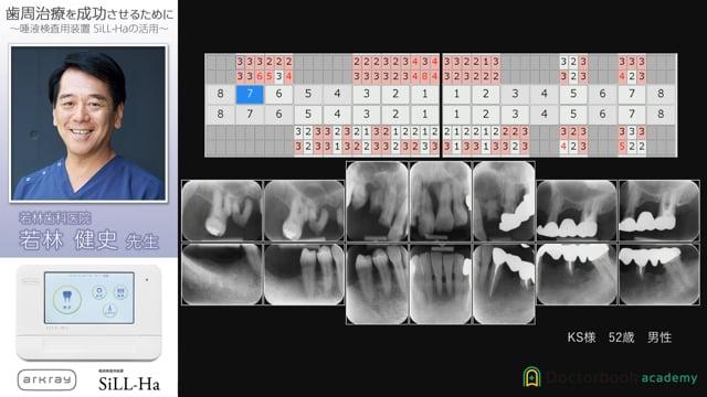 唾液検査装置SiLL-Ha 歯周治療を成功させるために