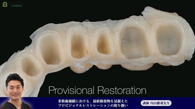 ⑪多数歯補綴における、最終修復物を見据えたプロビジョナルレストレーションの取り扱い【今だけ!プレミアム公開】