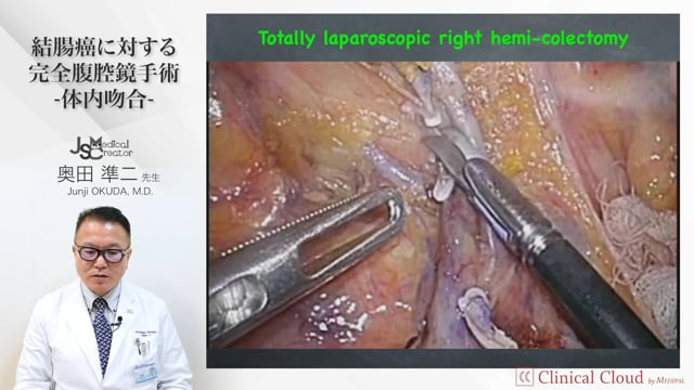 奥田 準二先生:結腸癌に対する完全腹腔鏡手術-体内吻合-