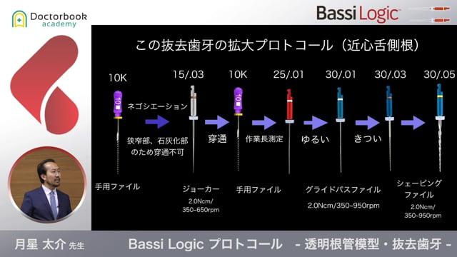 【オススメ動画 Pick UP】Bassi Logic プロトコール - 透明根管模型・抜去歯牙 -