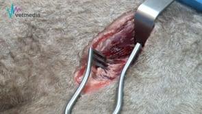 Abordaje intercostal (toracotomía intercostal modificada)