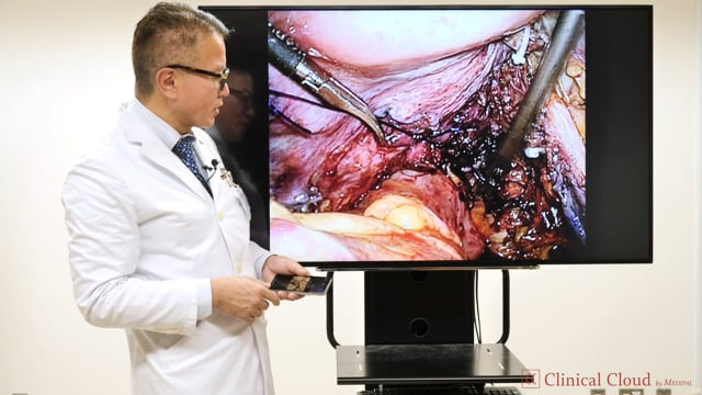 奥田 準二先生:Tailor-made TME and Extensive TME for T4 rectal cancer -Part2-