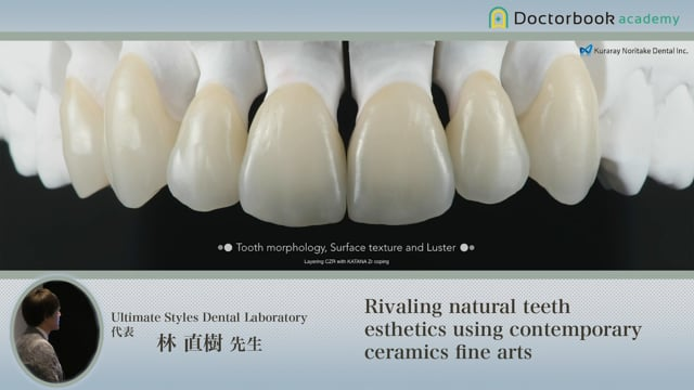Rivaling natural teeth esthetics using contemporary ceramics fine arts