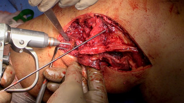 Staged Reconstruction of a Multiligamentous Knee Injury – ACL, PCL, PLC