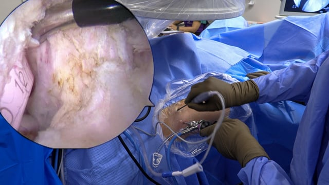 Arthroscopic Iliopsoas Tenotomy for Treatment of Snapping Hip after total Hip Arthroplasty