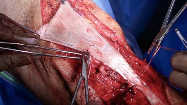 Surgical Management of Chronic Extensor Mechanism Ruptures