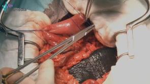 Gastrotomía