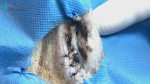 Saculectomía (técnica cerrada)
