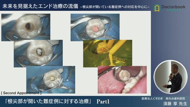 根尖部が開いた難症例に対する治療
