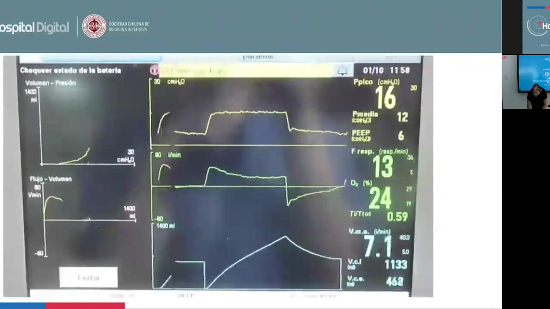 19-03-2020 - Cuidados Paciente Ventilado