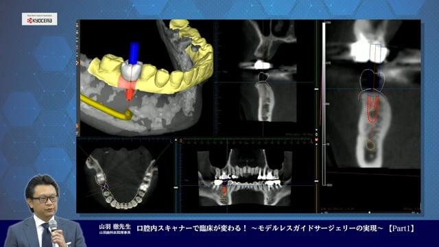 口腔内スキャナーで臨床が変わる! 〜モデルレスガイドサージェリーの実現〜