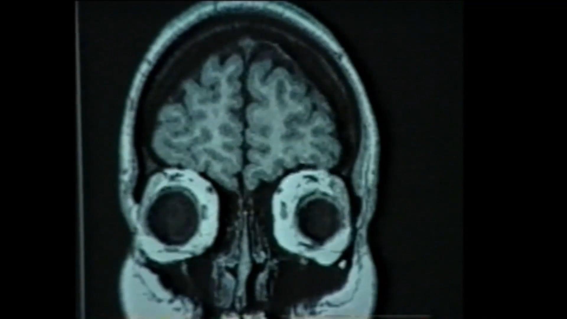 13 Human Brain Imaging_