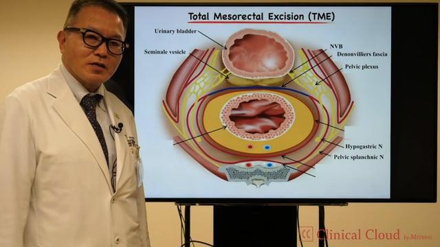 奥田 準二先生:Evolution of Energy System in MIS for ColoRectal Cancer Surgery -Part1-