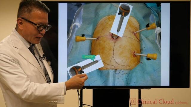 奥田 準二先生:Evolution of Energy System in MIS for ColoRectal Cancer Surgery -Part2-