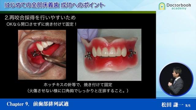#9 前歯部排列試適