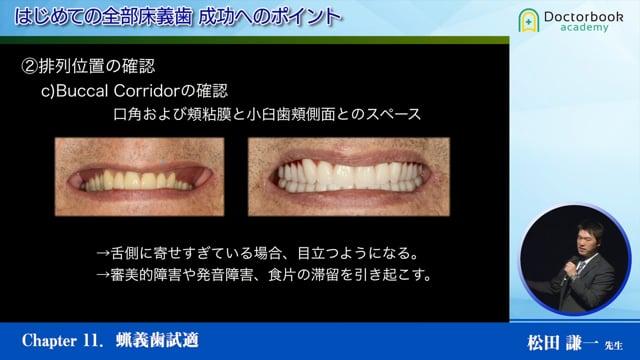 #11 ろう義歯試適