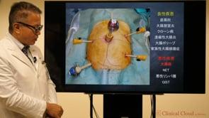 大腸早期癌の診療と治療の最前線 -Part2-