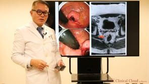 直腸癌手術の注意点 -Part2-