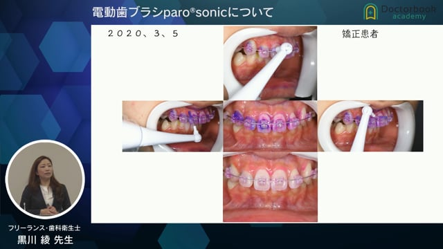 電動歯ブラシparo®sonicについて