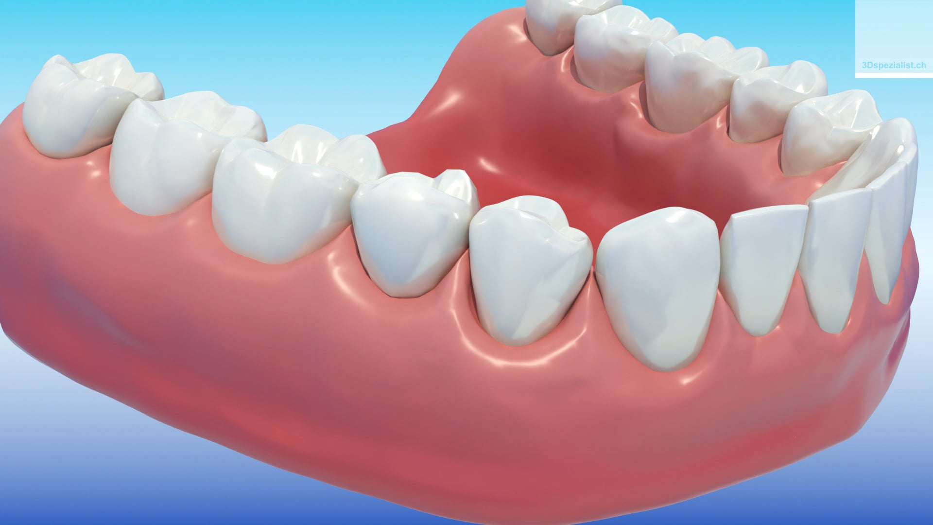 Post-Extraction Dental Implant