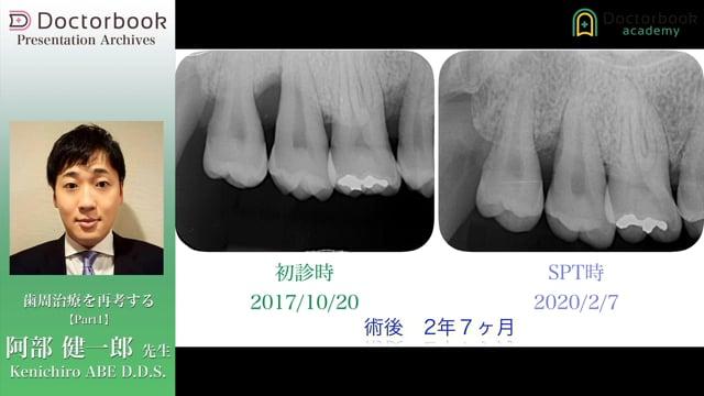歯周治療を再考する