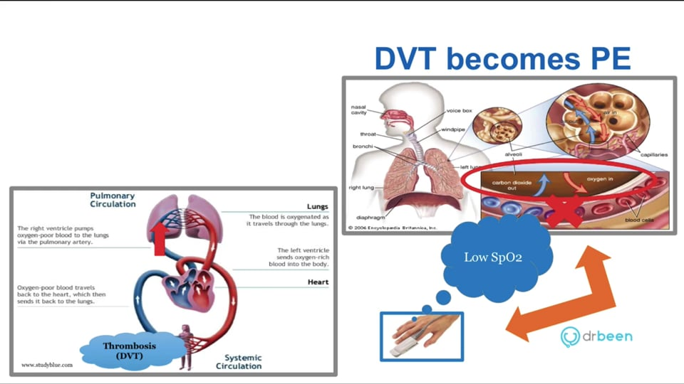 Pulmonary Embolism - Definition, Pathophysiology, and Presentation