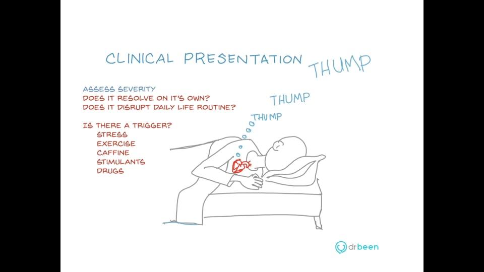 Premature Ventricular Contractions (EKG Interpretation)