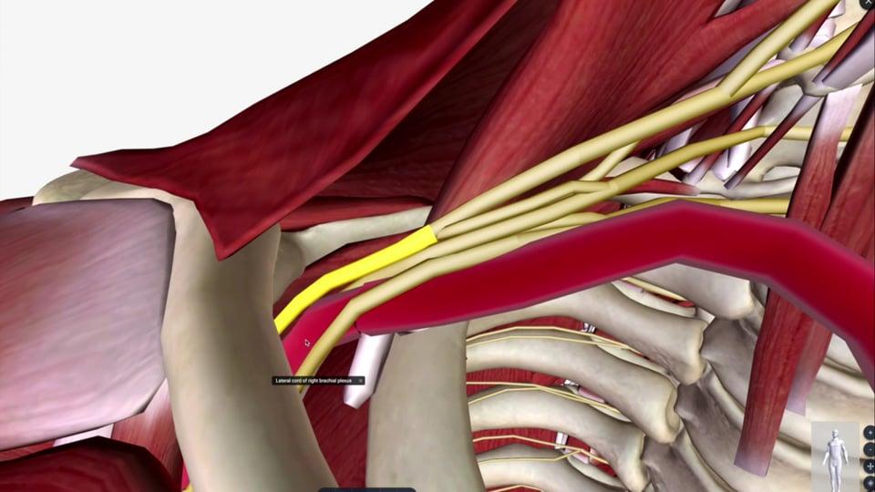 The Brachial Plexus and Nerve Lesions