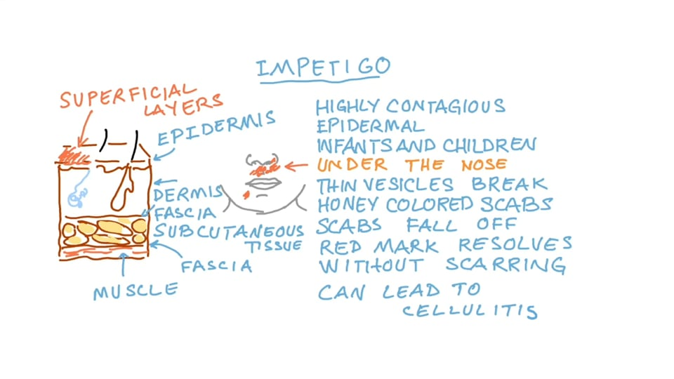Staphylococcus Skin Infections Impetigo Folliculitis Furuncles or Boils Carbuncles Cellulitis Surgical Wound