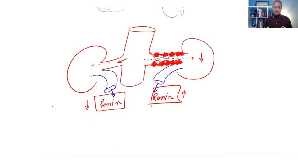 (Webinar) Hypertension Management (Part 3)