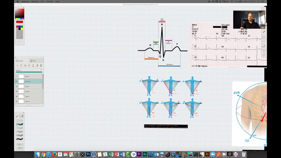 (Webinar) EKG Leads and Normal Waveform