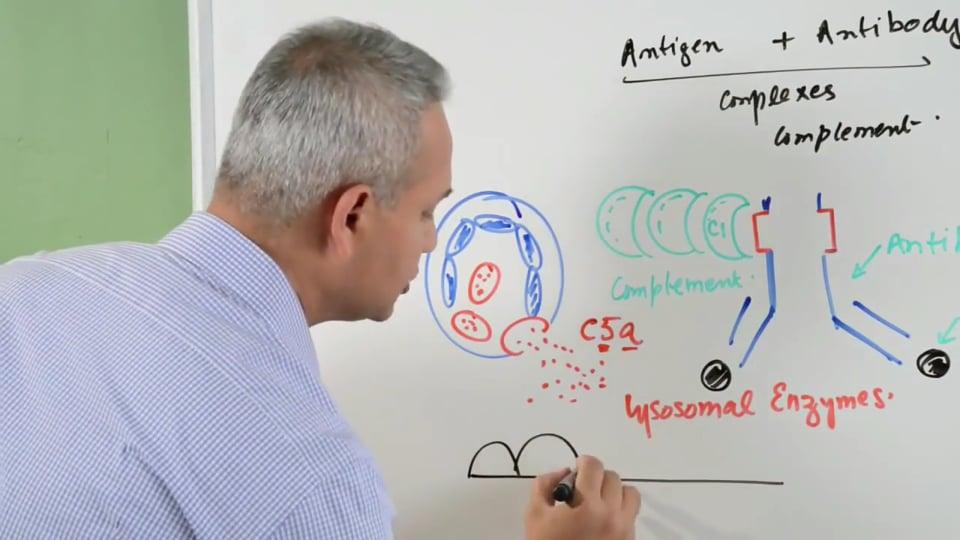Type III Hypersensitivity Reactions (part 1)