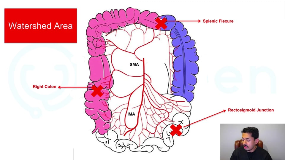 Ischemic Colitis: Clinical Diagnosis and Management