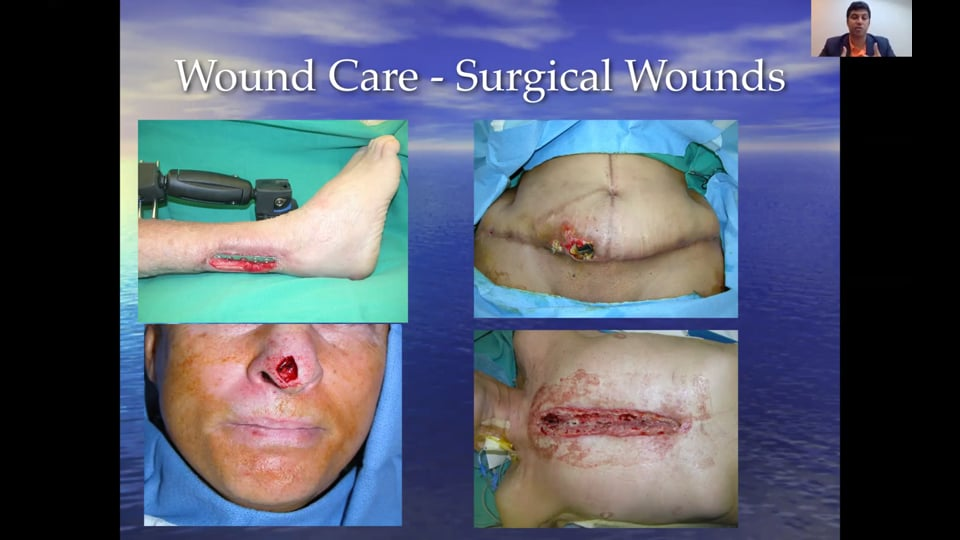 (Webinar) Wound Care and Management
