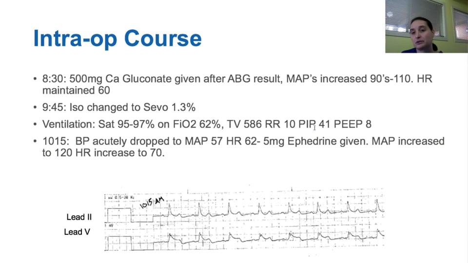 Acute ST Elevation MI during Non-Cardiac Surgery