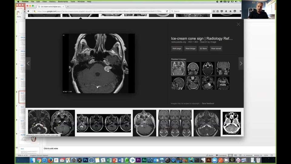 Cranial Nerve Discussion