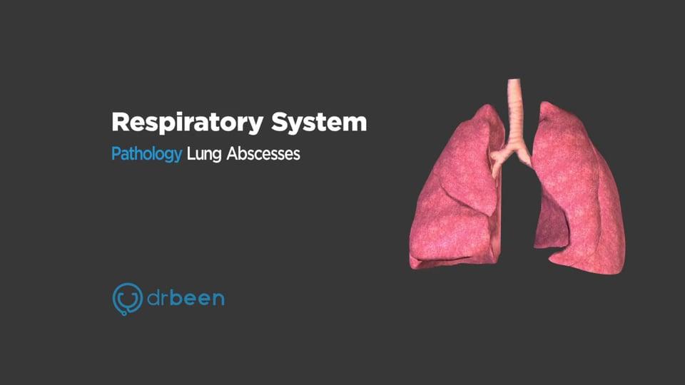 Lung Abscesses