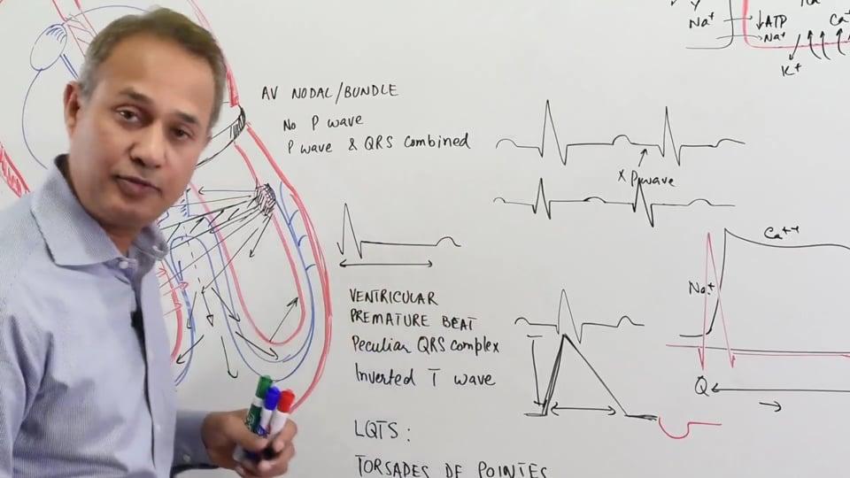 Premature Ventricular Beats Torsades  De Pointes