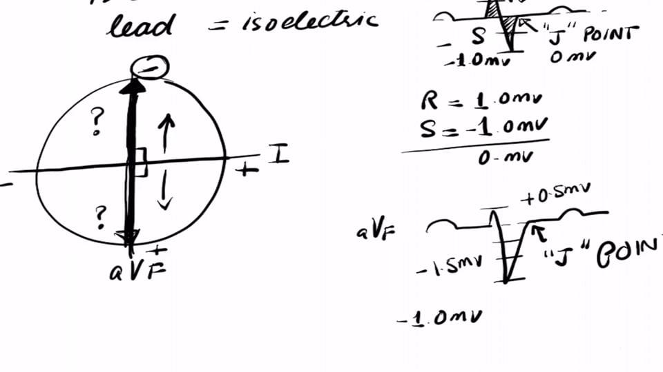 Cardiac Axis Using Isoelectric Lead Method