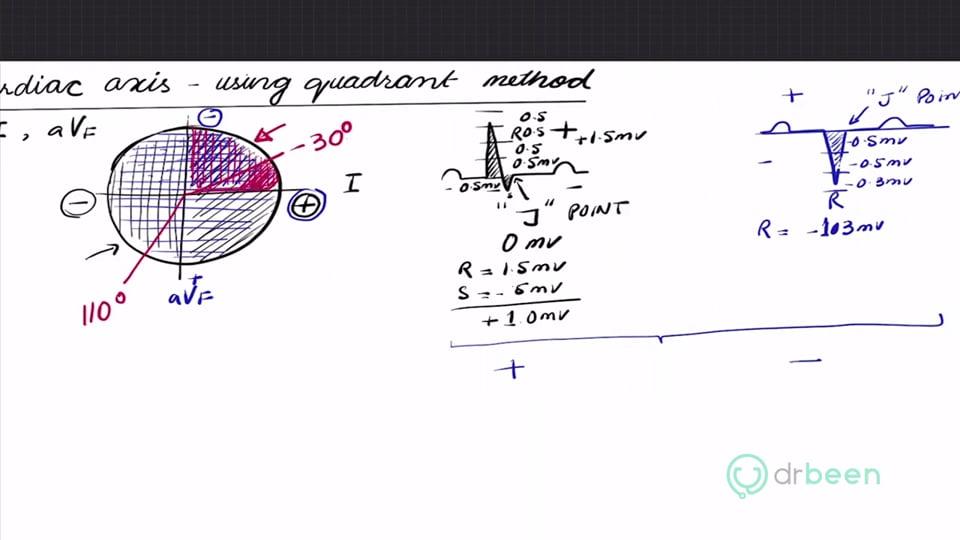 Cardiac Axis Using Quadrant Method