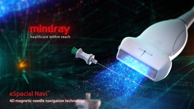 eSpacial Navi™ - 4D Magnetic Needle Navigation Technology