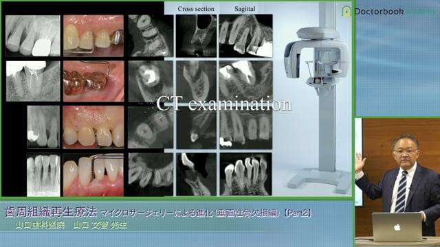 #2 なぜ歯間部の血液供給が少ないか