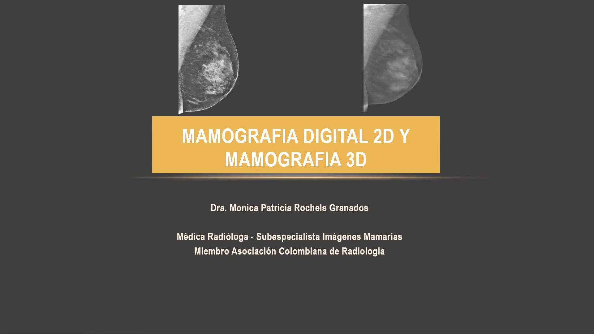 Mama_Mamografía 2D y 3D