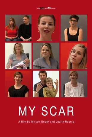 Image result for my scar film